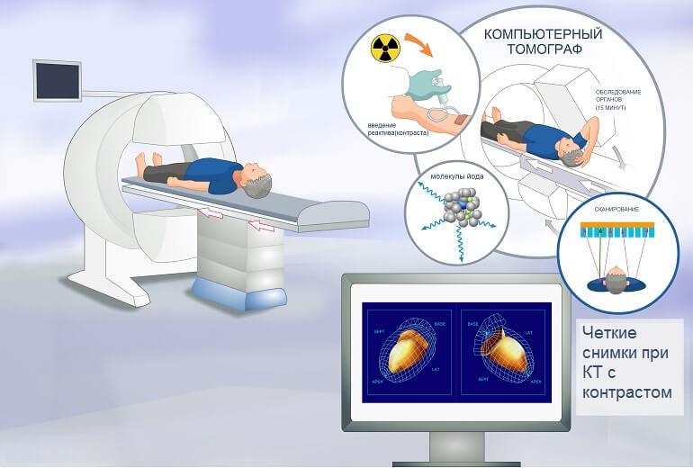 Расположение пациента на томографе и ход процедуры