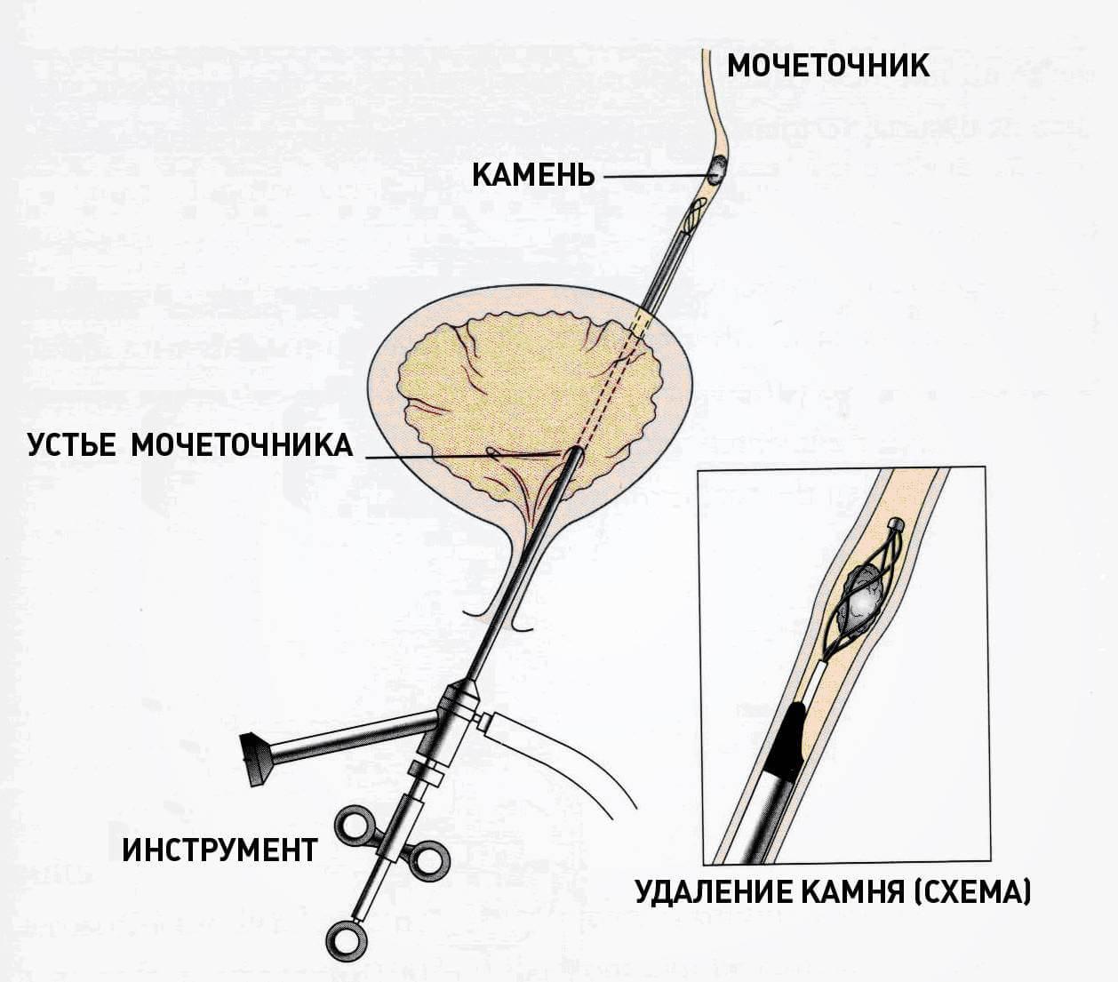 Введение уретроскопа через мочеиспускательный канал