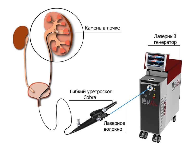 Расщепление камней с помощью лазерной установки