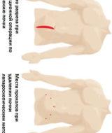 Лапароскопия почки: подготовка, осложнения, реабилитация