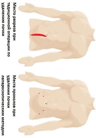 Какие делаются разрезы при операциях