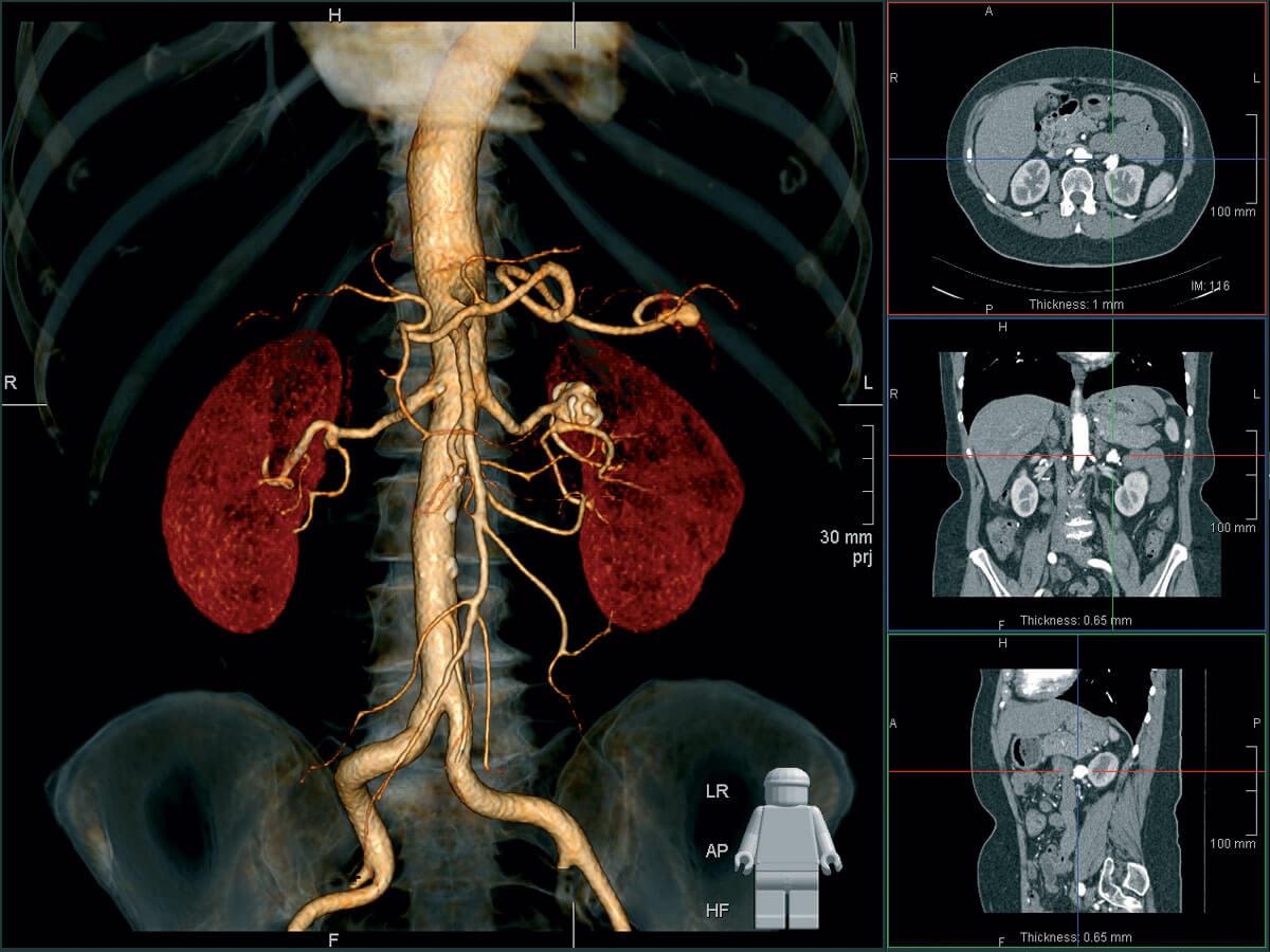 Контрастное вещество позволяет более точно оценить сосуды и состояние органа