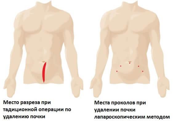Разрезы выполняемые при различных видах операций