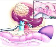 Нефрэктомия почки: показания, проведение операции, осложнения