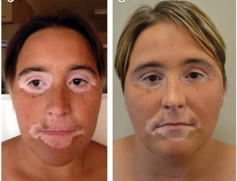 Потемнение кожи лица является одним из главных признаков заболевания