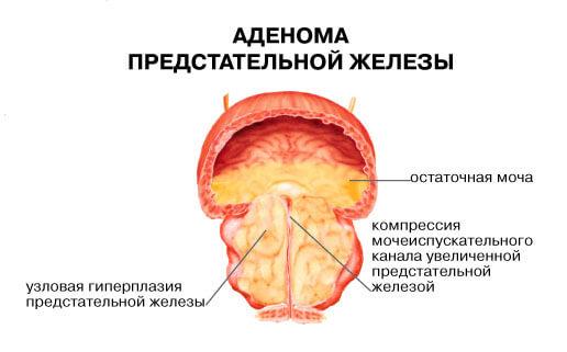 Сужение уретры из-за разрастания опухоли