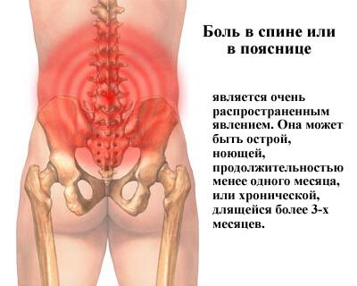 Боль локализуется чётко по середине позвоночника