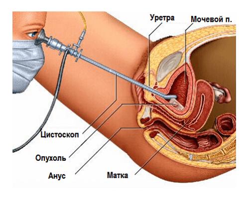 Врач осматривает мочевой пузырь с помощью цистоскопа