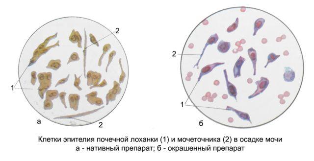 При анализе мочи врач четко видит клетки эпителия через микроскоп