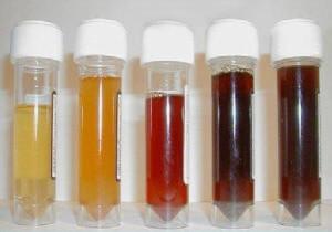 Моча изменяет свой цвет при наличии заболеваний мочеполовой системы