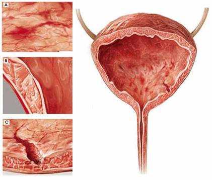 При различных заболеваниях мочевого пузыря клетки отслаиваются и появляются в моче