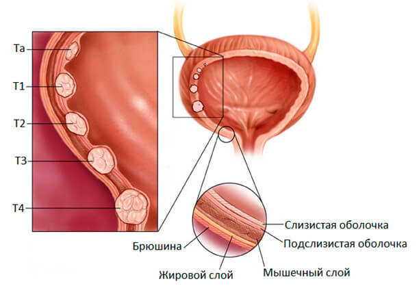 Заболевание может развиваться в 4 стадии