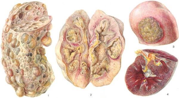 Многослойные разрастания в органе