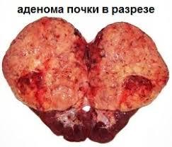 Образование опухоли на почке, фото в разрезе