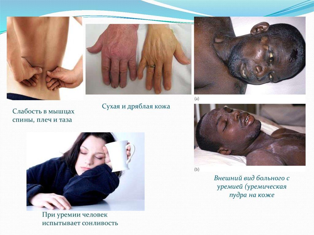 Больные уремией испытывают эти симптомы