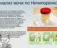 Анализ мочи при остром и хроническом гломерулонефрите