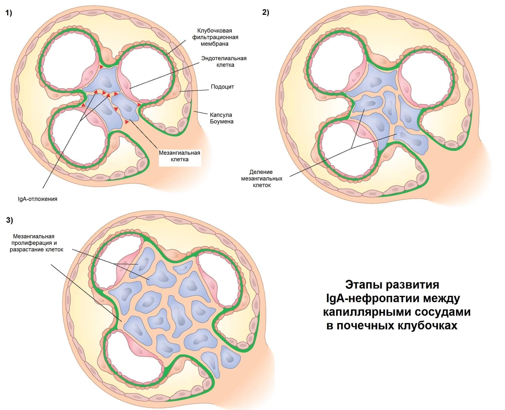Отложения иммуноглобулина в сосудах почек
