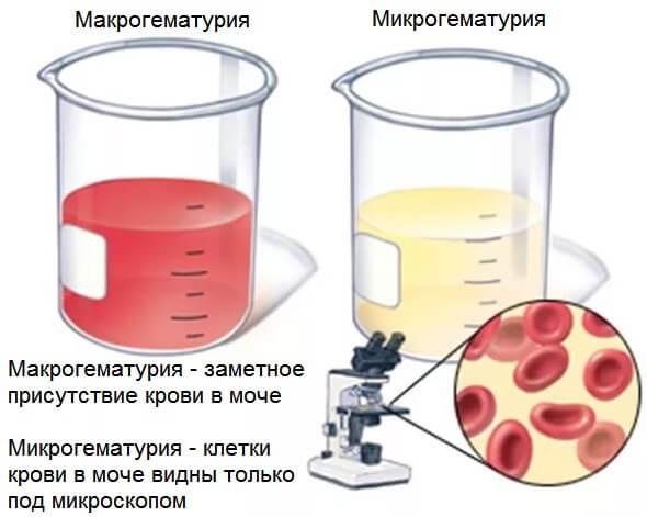 В моче появляется кровь, что свидетельствует о появлении болезни